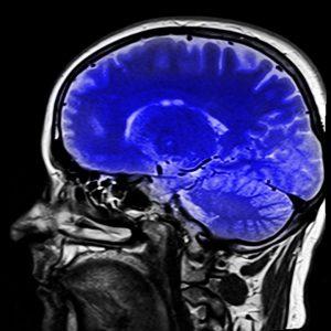 hjärnscanning